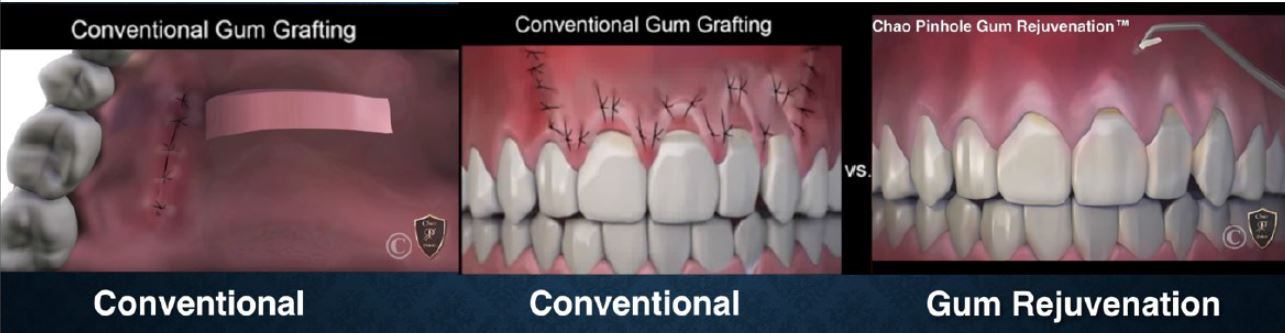 Conventional Gum Grafting without Pinhole